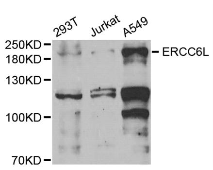 ERCC6L / FLJ20105 Antibody - Western blot analysis of extracts of various cell lines, using ERCC6L antibody.