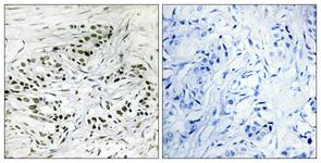 IHC of paraffin-embedded human breast carcinoma tissue, using ERF Antibody. The picture on the right is treated with the synthesized peptide.