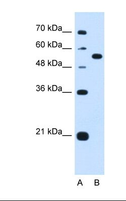 Lane A: Marker. Lane B: HepG2 cell lysate. Antibody concentration: 1.25 ug/ml. Gel concentration: 12%.  This image was taken for the unconjugated form of this product. Other forms have not been tested.