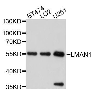 Western blot analysis of extracts of various cell lines, using LMAN1 antibody at 1:1000 dilution. The secondary antibody used was an HRP Goat Anti-Rabbit IgG (H+L) at 1:10000 dilution. Lysates were loaded 25ug per lane and 3% nonfat dry milk in TBST was used for blocking. An ECL Kit was used for detection and the exposure time was 5s.