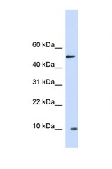 ERH antibody Western blot of Fetal Brain lysate. Antibody concentration 1 ug/ml.  This image was taken for the unconjugated form of this product. Other forms have not been tested.
