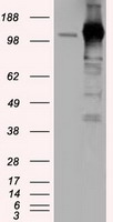 HEK293T cells were transfected with the pCMV6-ENTRY control (Left lane) or pCMV6-ENTRY TACC3 (Right lane) cDNA for 48 hrs and lysed. Equivalent amounts of cell lysates (5 ug per lane) were separated by SDS-PAGE and immunoblotted with anti-TACC3.