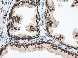 IHC of paraffin-embedded Human prostate tissue using anti-TACC3 mouse monoclonal antibody. (Dilution 1:50).