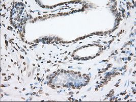 IHC of paraffin-embedded Carcinoma of Human prostate tissue using anti-TACC3 mouse monoclonal antibody. (Dilution 1:50).