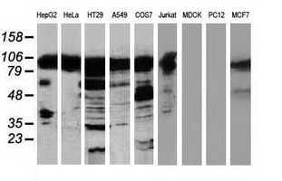 Western blot of extracts (35 ug) from 9 different cell lines by using anti-TACC3 monoclonal antibody (HepG2: human; HeLa: human; SVT2: mouse; A549: human; COS7: monkey; Jurkat: human; MDCK: canine; PC12: rat; MCF7: human).