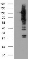 ERIC-1 / TACC3 Antibody - HEK293T cells were transfected with the pCMV6-ENTRY control (Left lane) or pCMV6-ENTRY TACC3 (Right lane) cDNA for 48 hrs and lysed. Equivalent amounts of cell lysates (5 ug per lane) were separated by SDS-PAGE and immunoblotted with anti-TACC3.