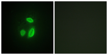 Immunofluorescence analysis of HUVEC cells, using SEPARASE Antibody. The picture on the right is blocked with the synthesized peptide.