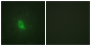 Immunofluorescence analysis of HUVEC cells, using SEPARASE (Phospho-Ser801) Antibody. The picture on the right is blocked with the phospho peptide.