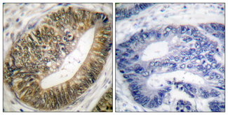 Immunohistochemistry analysis of paraffin-embedded human colon carcinoma, using SEPARASE (Phospho-Ser801) Antibody. The picture on the right is blocked with the phospho peptide.