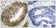ESPL1 / Separase Antibody - Immunohistochemistry analysis of paraffin-embedded human colon carcinoma, using SEPARASE (Phospho-Ser801) Antibody. The picture on the right is blocked with the phospho peptide.