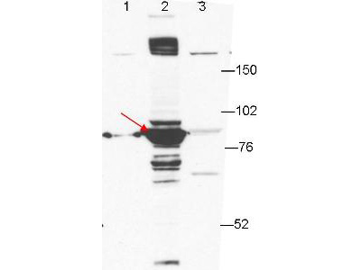 ESRP1 / RBM35A Antibody - Anti-ESRP-1 Antibody - Western Blot. Anti-ESRP-1 by western blot shows detection of ESRP-1 in transfected 293T cell extracts (lane 2, arrowhead). Lanes 1 and 3 contain GFP-transfected- and ESRP2-transfected 293T cell lysates, respectively. Briefly, each lane contains approximately 5 ug of lysate. Primary antibody was used at a 1:1000 dilution in PBS-T plus milk, and reacted for 1hr at room temperature. The membrane was washed and reacted with a 1:10000 dilution of an anti-mouse ECL antibody for 1hr at room temperature. Molecular weight estimation was made by comparison to prestained MW markers.