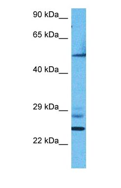 Western blot of ERR1 Antibody with human 786-0 Whole Cell lysate.  This image was taken for the unconjugated form of this product. Other forms have not been tested.