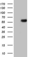 HEK293T cells were transfected with the pCMV6-ENTRY control (Left lane) or pCMV6-ENTRY ESRRB (Right lane) cDNA for 48 hrs and lysed. Equivalent amounts of cell lysates (5 ug per lane) were separated by SDS-PAGE and immunoblotted with anti-ESRRB.