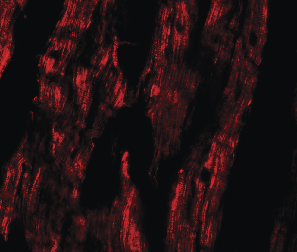 Immunofluorescence of ESRRB in human heart tissue with ESRRB antibody at 20 ug/ml.