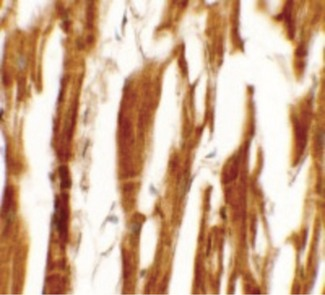 Immunohistochemistry of ESRR8 in human heart tissue with ESRR8 antibody at 5 ug/ml.