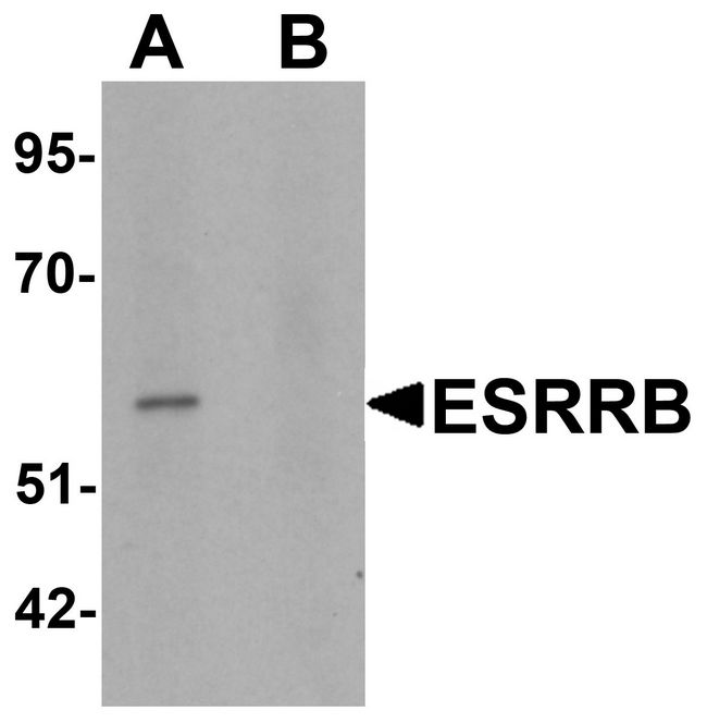 Western blot analysis of ESRRB in human heart tissue lysate with ESRRB antibody at 1 ug/ml in (A) the absence and (B) the presence of blocking peptide.