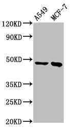 Positive Western Blot detected in A549 whole cell lysate, MCF-7 whole cell lysate. All lanes: ESRRB antibody at 3.7 µg/ml Secondary Goat polyclonal to rabbit IgG at 1/50000 dilution. Predicted band size: 49, 57, 56 KDa. Observed band size: 49 KDa