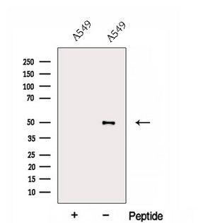 ESRRB / ERR Beta Antibody - Western blot analysis of extracts of A549 cells using ESRRB antibody. The lane on the left was treated with blocking peptide.