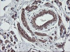 ESRRG / ERR Gamma Antibody - IHC of paraffin-embedded Human breast tissue using anti-ESRRG mouse monoclonal antibody. (Heat-induced epitope retrieval by 10mM citric buffer, pH6.0, 100C for 10min).