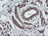 IHC of paraffin-embedded Human breast tissue using anti-ESRRG mouse monoclonal antibody. (Heat-induced epitope retrieval by 10mM citric buffer, pH6.0, 100C for 10min).