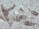 IHC of paraffin-embedded Human colon tissue using anti-ESRRG mouse monoclonal antibody. (Heat-induced epitope retrieval by 10mM citric buffer, pH6.0, 100C for 10min).