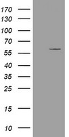 ESRRG / ERR Gamma Antibody - HEK293T cells were transfected with the pCMV6-ENTRY control (Left lane) or pCMV6-ENTRY ESRRG (Right lane) cDNA for 48 hrs and lysed. Equivalent amounts of cell lysates (5 ug per lane) were separated by SDS-PAGE and immunoblotted with anti-ESRRG.