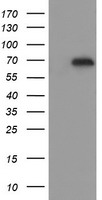 HEK293T cells were transfected with the pCMV6-ENTRY control (Left lane) or pCMV6-ENTRY ESRRG (Right lane) cDNA for 48 hrs and lysed. Equivalent amounts of cell lysates (5 ug per lane) were separated by SDS-PAGE and immunoblotted with anti-ESRRG.