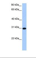 ETFB Antibody - Fetal heart lysate. Antibody concentration: 1.0 ug/ml. Gel concentration: 12%.  This image was taken for the unconjugated form of this product. Other forms have not been tested.