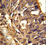 ETFDH Antibody - Formalin-fixed and paraffin-embedded human lung carcinoma reacted with ETFDH Antibody , which was peroxidase-conjugated to the secondary antibody, followed by DAB staining. This data demonstrates the use of this antibody for immunohistochemistry; clinical relevance has not been evaluated.