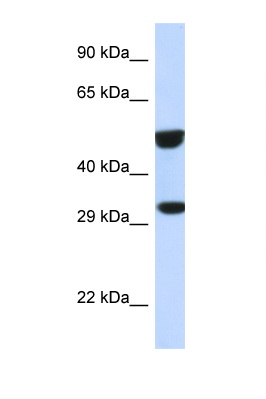 ETS2 antibody Western blot of 293T Cell lysate. Antibody concentration 1 ug/ml.  This image was taken for the unconjugated form of this product. Other forms have not been tested.