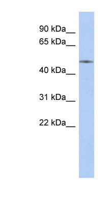 ETS2 antibody Western blot of Fetal Kidney lysate. This image was taken for the unconjugated form of this product. Other forms have not been tested.