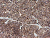 IHC of paraffin-embedded Adenocarcinoma of Human ovary tissue using anti-ETS2 mouse monoclonal antibody.