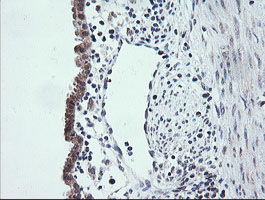 IHC of paraffin-embedded Human endometrium tissue using anti-ETS2 mouse monoclonal antibody.