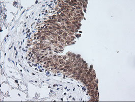 IHC of paraffin-embedded Human bladder tissue using anti-ETS2 mouse monoclonal antibody.