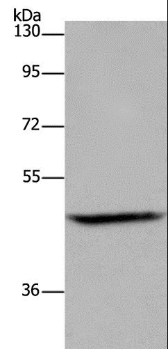 Western blot analysis of Mouse brain tissue, using ETS2 Polyclonal Antibody at dilution of 1:500.