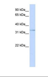 ETV3L Antibody - Jurkat cell lysate. Antibody concentration: 1.0 ug/ml. Gel concentration: 12%.  This image was taken for the unconjugated form of this product. Other forms have not been tested.