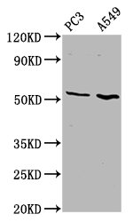 Western Blot Positive WB detected in: PC3 whole cell lysate, A549 whole cell lysate All Lanes: ETV5 antibody at 4.6µg/ml Secondary Goat polyclonal to rabbit IgG at 1/50000 dilution Predicted band size: 58, 63 KDa Observed band size: 58 KDa