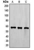 ETV6 / TEL Antibody - Western blot analysis of TEL expression in CCRFCEM (A); Jurkat (B); K562 (C) whole cell lysates.