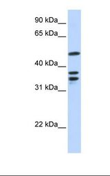 ETV6 / TEL Antibody - 721_B cell lysate. Antibody concentration: 1.0 ug/ml. Gel concentration: 12%.  This image was taken for the unconjugated form of this product. Other forms have not been tested.