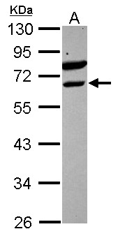 ETV6 / TEL Antibody - Sample (30 ug of whole cell lysate) A: Raji 10% SDS PAGE ETV6 antibody diluted at 1:1000