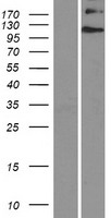 EVC / DWF-1 Protein - Western validation with an anti-DDK antibody * L: Control HEK293 lysate R: Over-expression lysate