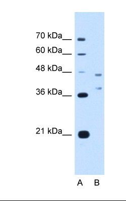 Lane A: Marker. Lane B: HepG2 cell lysate. Antibody concentration: 2.5 ug/ml. Gel concentration: 12%.  This image was taken for the unconjugated form of this product. Other forms have not been tested.