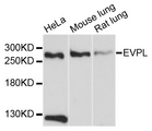 Western blot analysis of extracts of various cell lines, using EVPL antibody at 1:1000 dilution. The secondary antibody used was an HRP Goat Anti-Rabbit IgG (H+L) at 1:10000 dilution. Lysates were loaded 25ug per lane and 3% nonfat dry milk in TBST was used for blocking. An ECL Kit was used for detection and the exposure time was 90s.