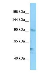 EXO1 antibody Western Blot of A549. Antibody dilution: 1 ug/ml.  This image was taken for the unconjugated form of this product. Other forms have not been tested.