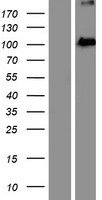 EXOC2 / SEC5 Protein - Western validation with an anti-DDK antibody * L: Control HEK293 lysate R: Over-expression lysate