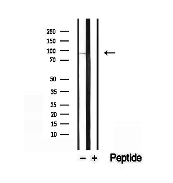 EXOC3 / SEC6 Antibody - Western blot analysis of extracts of HeLa cells using SEC6 antibody.