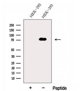 EXOC7 Antibody - Western blot analysis of extracts of 3T3 cells using Exo70 antibody. The lane on the left was treated with blocking peptide.