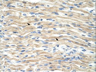 EXOSC6 Antibody - EXOSC6 antibody ARP41087_T100-NP_478126-EXOSC6 (exosome component 6) Antibody was used in IHC to stain formalin-fixed, paraffin-embedded human muscle.  This image was taken for the unconjugated form of this product. Other forms have not been tested.