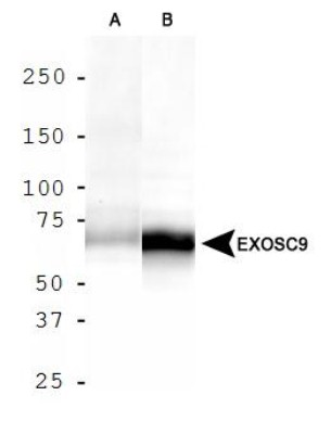Western Blot: Exosome Component 9 Antibody - Analysis of EXOSC9 in A. HepG2 cell lysate and B. MCF7 cell lysate.  This image was taken for the unconjugated form of this product. Other forms have not been tested.