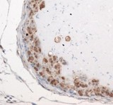 Immunohistochemistry: Exosome Component 9 Antibody - Staining of EXOSC9 in mouse prostate.  This image was taken for the unconjugated form of this product. Other forms have not been tested.